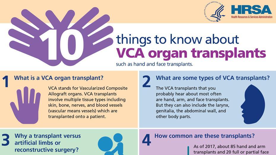 información importante sobre los trasplantes de órganos VCA
