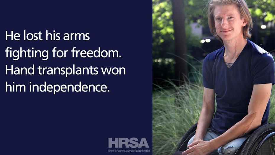 Perdió sus brazos luchando por la libertad. Los trasplantes de manos le dieron independencia.