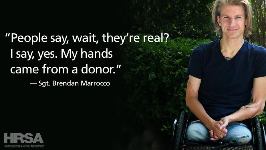 """Las personas dicen, """"espera, ¿son reales?"""" Y yo respondo que sí, mis manos son de un donante."""